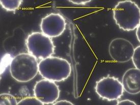 Resultado de imagen de imagenes pleomorfos sangre campo oscuro